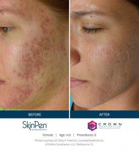 SkinPenBA2